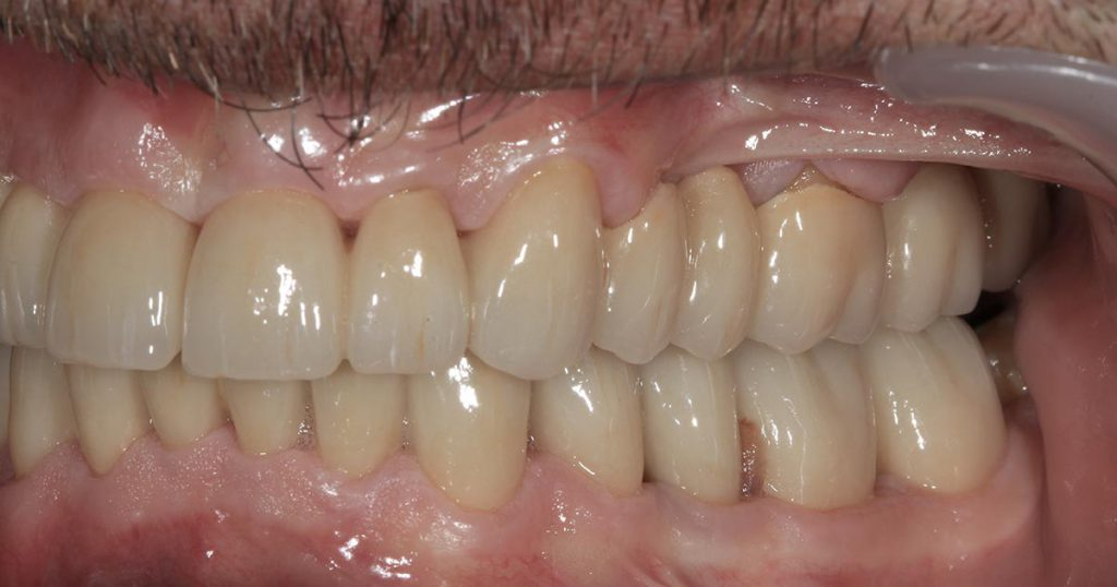 Vollkeramische Restauration im Mund des Patienten