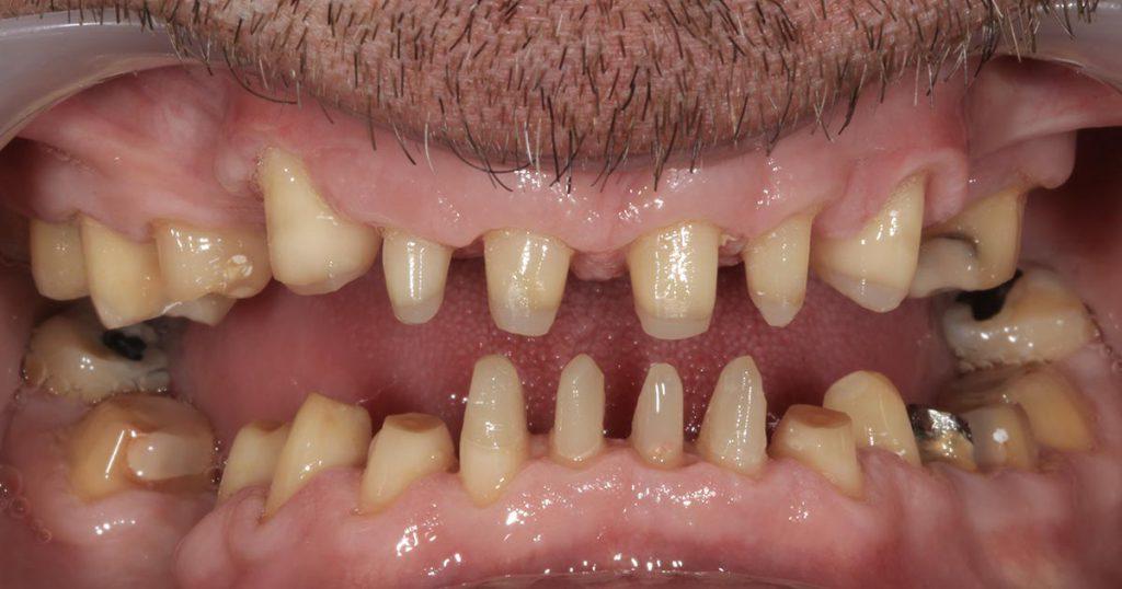 Für die Aufnahme von Zahnersatz vorbereitet